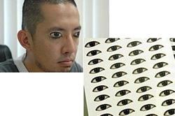 Asterischi vascolari cancellati su una faccia